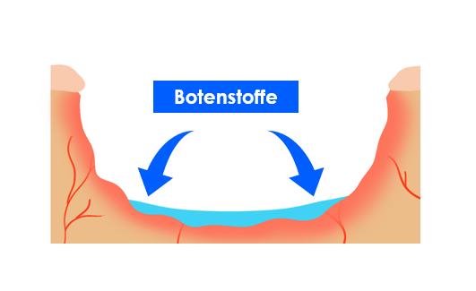 Über die Wundflüssigkeit im Wundbett werden Botenstoffe verteilt