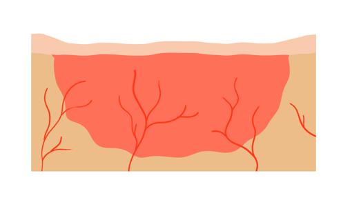 Reparation der Handverletzung mit unspezifischem Bindegewebe.