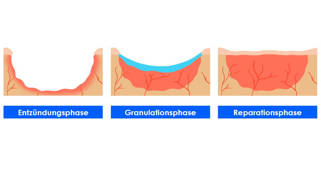 Die Phasen der Wundheilung