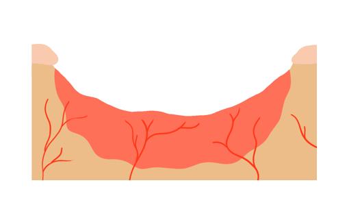 Zellen teilen sich in der Tiefe der Wunde und bilden das Granulationsgewebe.