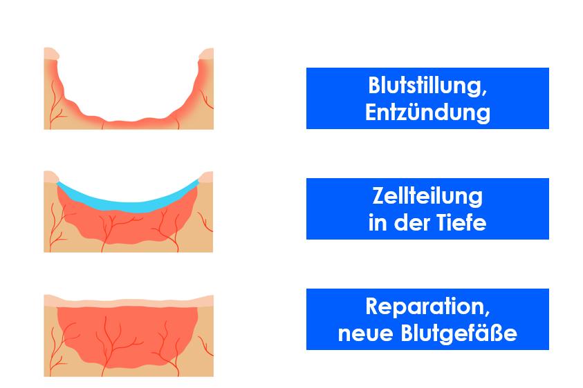 Die drei Phasen der Wundheilung nach einer Handverletzung: Entzündung, Granulation und Reparation.