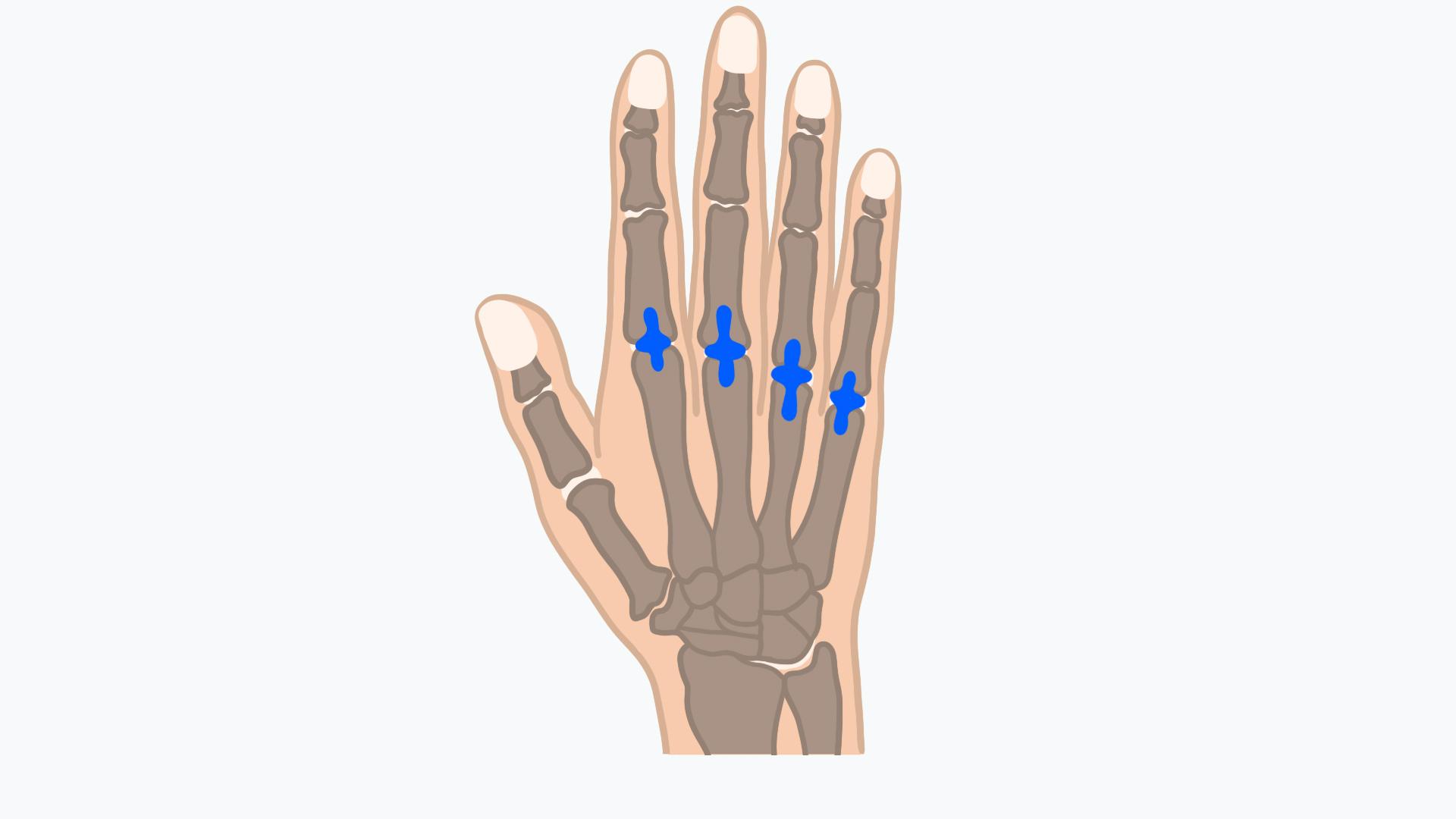 Bei der Arthroplastik werden künstliche Fingergelenke eingesetzt