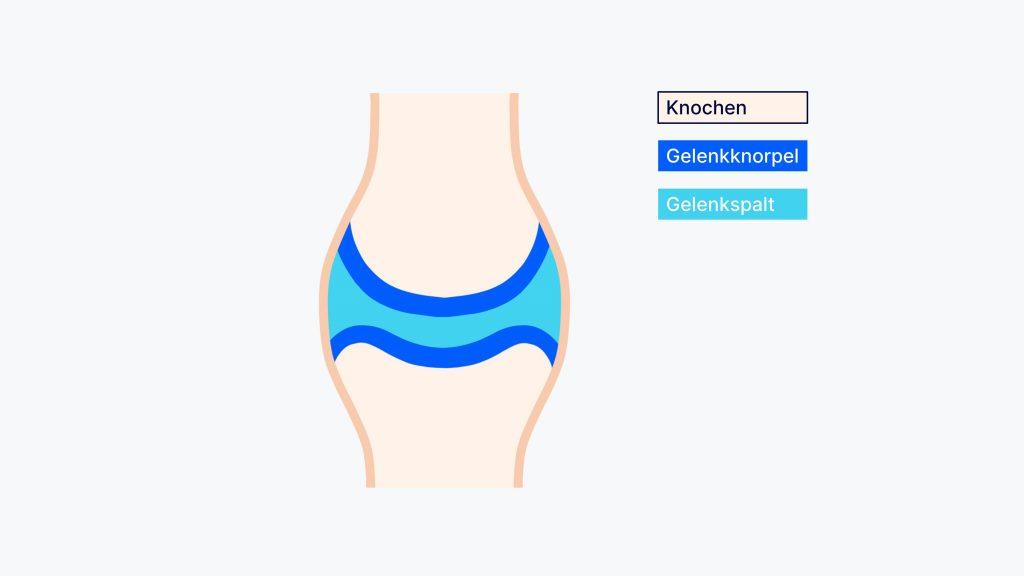 Die Knochen eines Gelenk treffen nicht direkt aufeinander, sondern sind durch Gelenkknorpel voneinander getrennt