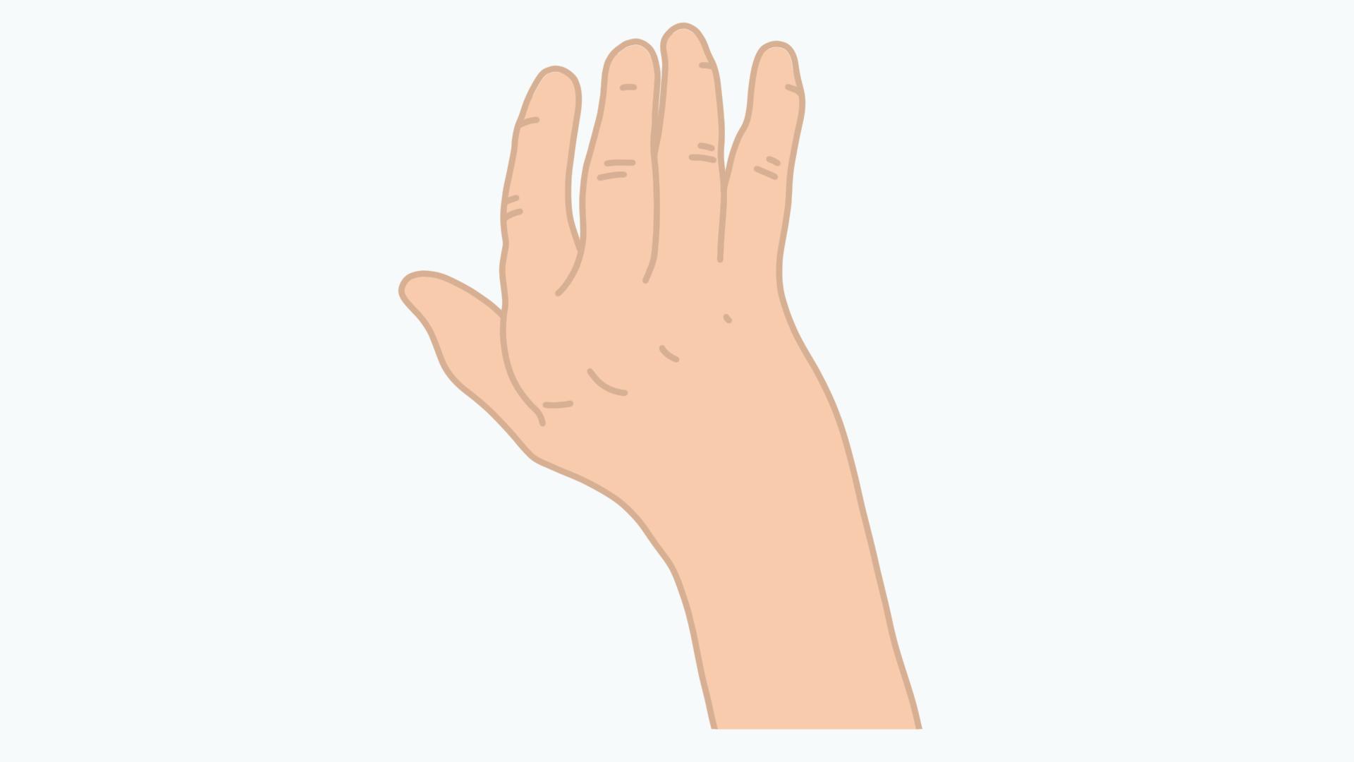 Arthrose im Handgelenk kann unter anderem zu einer Handskoliose führen