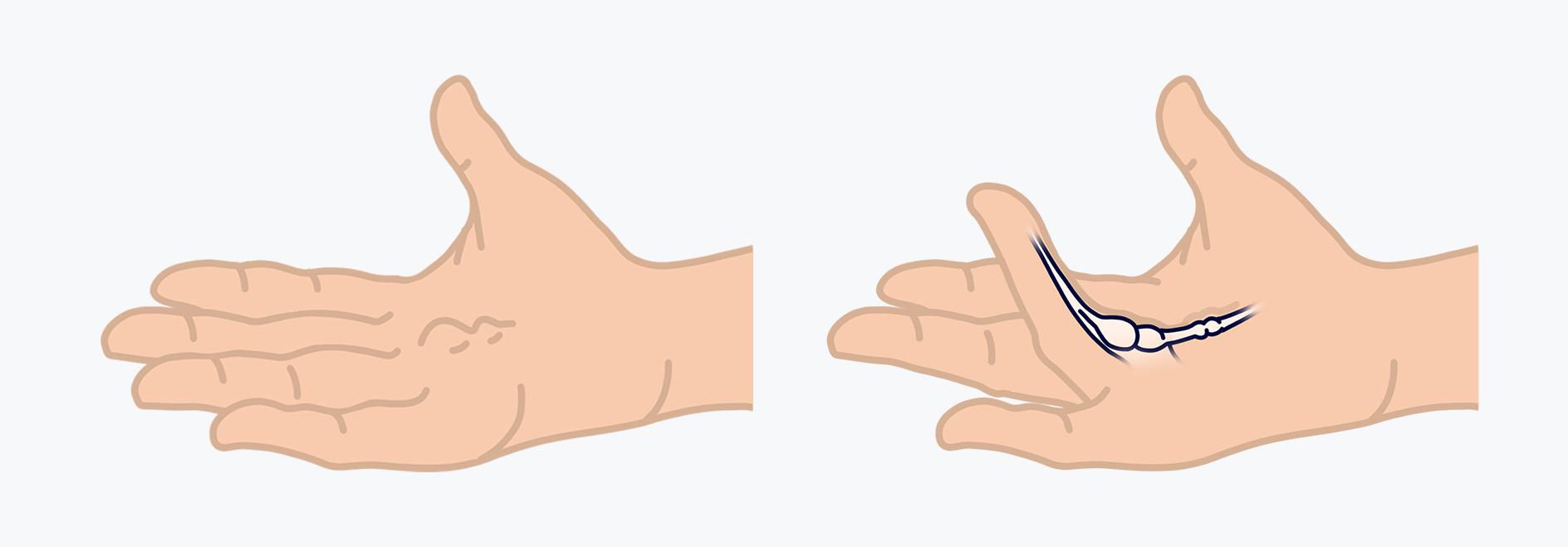 Anfangs bilden sich Knoten in der Handfläche, mit der Zeit entwickelt sich ein Kollagenstrang