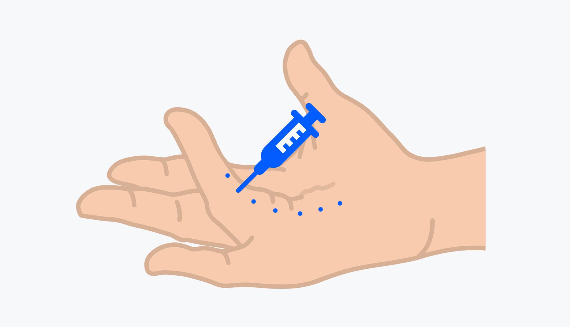 Bei der Nadelfasziotomie wird der Kollagenstrang mit Nadelstichen geschwächt