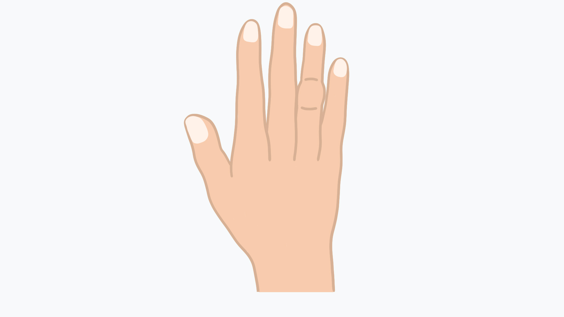 Bei der Bouchard-Arthrose tritt oft eine Schwellung der mittleren Fingergelenke auf