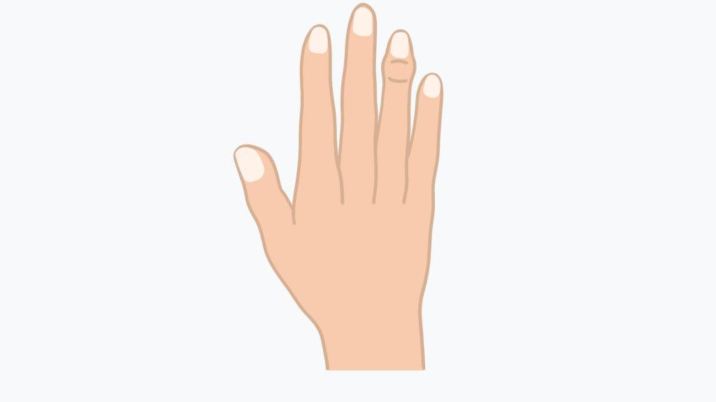 ... bei der Heberden-Arthrose hingegen sind die obersten Fingergelenke betroffen