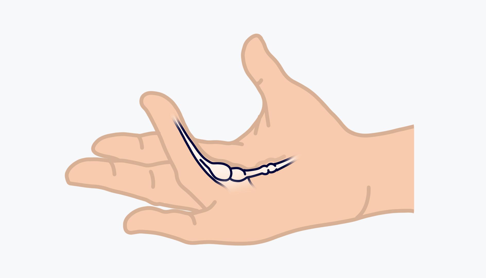 Bei Morbus Dupuytren entwickelt sich langsam ein Strang aus Kollagen in der Handfläche