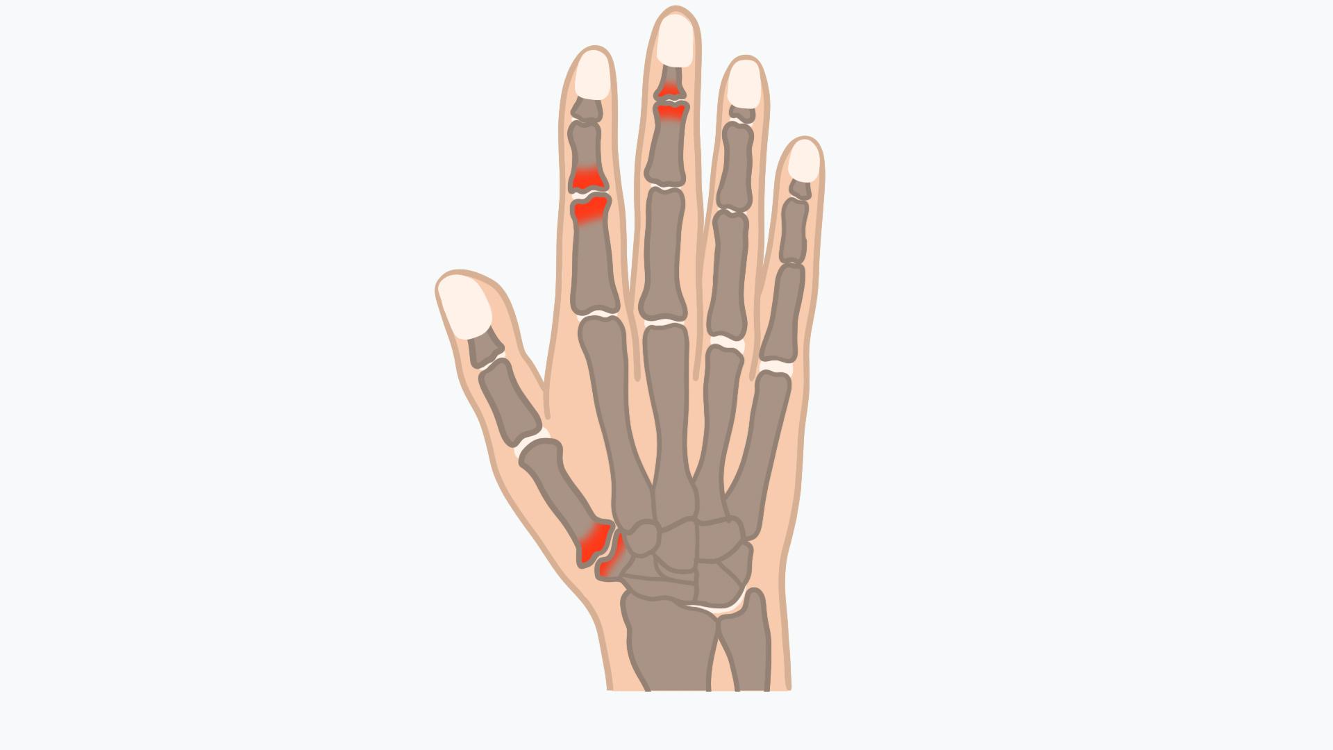 Schmerzen in den Fingergelenken können mit einer Arthrose zusammenhängen
