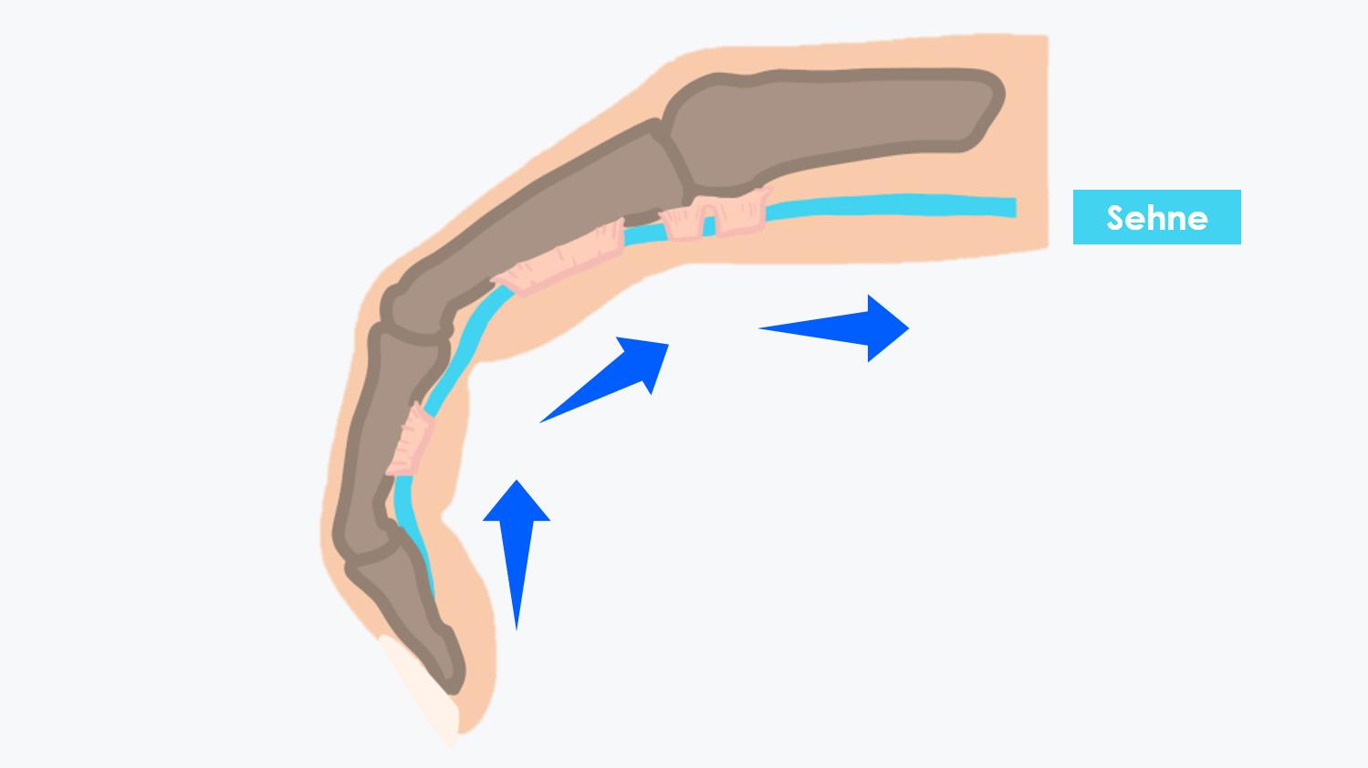 Nur wenn die Beugesehne regelmäßig durch die Sehnenscheide hindurchgleitet, wird ausreichend Synovialflüssigkeit abgesondert.