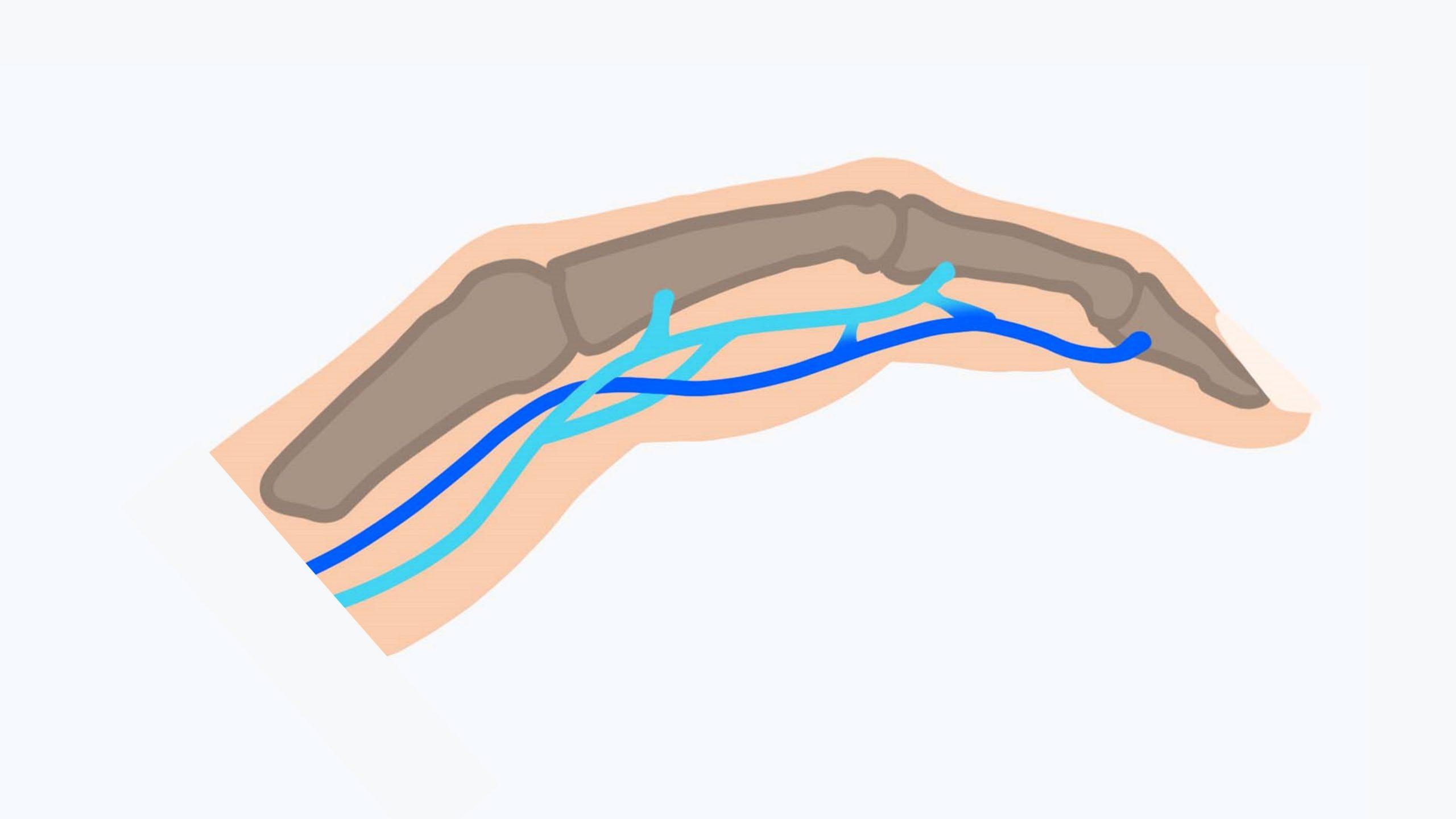 Die Beugesehnen der Finger: die oberflächliche (türkis) und tiefe Beugesehne (blau) verlaufen gemeinsam.