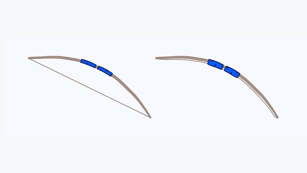 Ohne die Ringbänder (blau) würde die Beugesehne sich vom Knochen entfernen - der Bogensehneneffekt