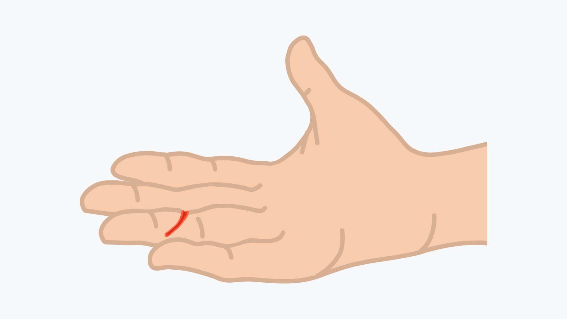 Bei einer tiefen Schnittverletzung steht der Verdacht einer Beugesehnenverletzung im Raum.