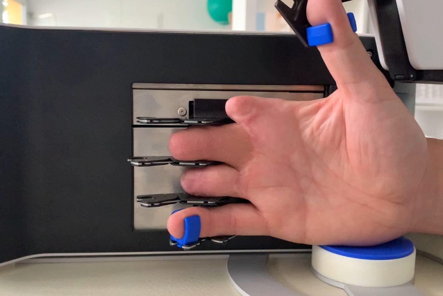 Behandlungsbeispiel Schmalhand